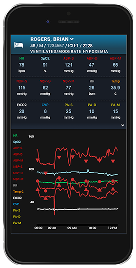 ACG-RemoteView ICU on smartphone