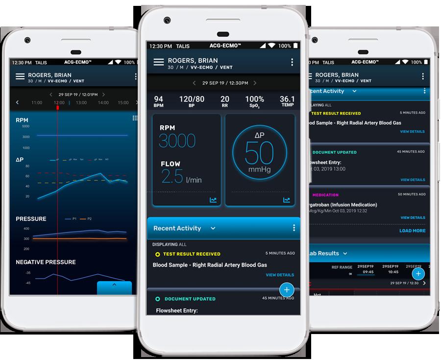Extracorporeal membrane oxygenation (ECMO) screens on three smartphones