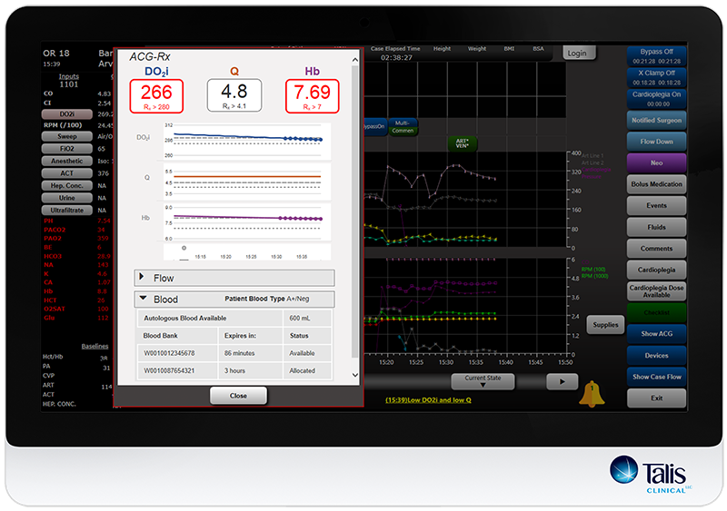 ACG_Rx on monitor within PIMS software